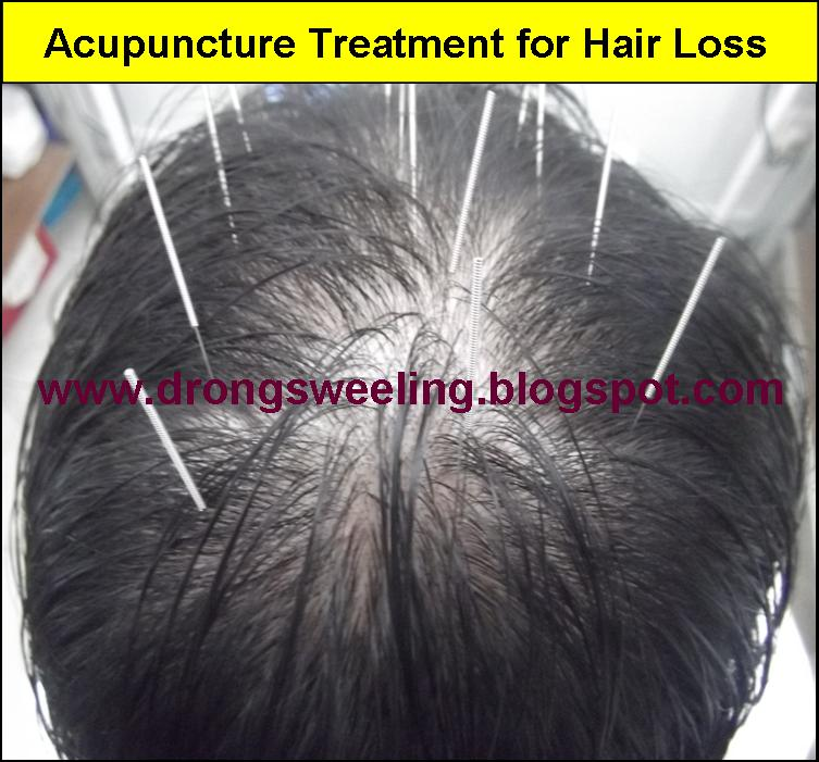 acupuncture points for baldness
