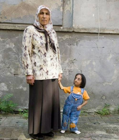 World&#39;s Shortest Woman
