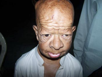 an overview of the causes of progeria its symptoms and treatment Learn in-depth information on progeria, its causes, symptoms, diagnosis,  complications, treatment, prevention, and prognosis.