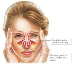 pengobatan sinusitis kronis