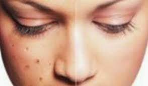 Cara Menghilangkan Flek Hitam Pada Kulit Wajah Secara Alami