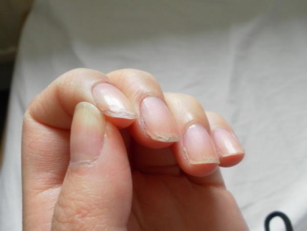 unghii crapate si exfoliate
