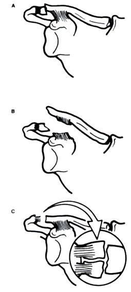 Fractura de la clavícula y escápula