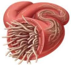 Les parasites chez les enfants dans la vessie