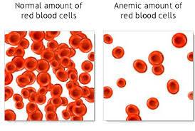 seberapa bahaya penyakit anemia
