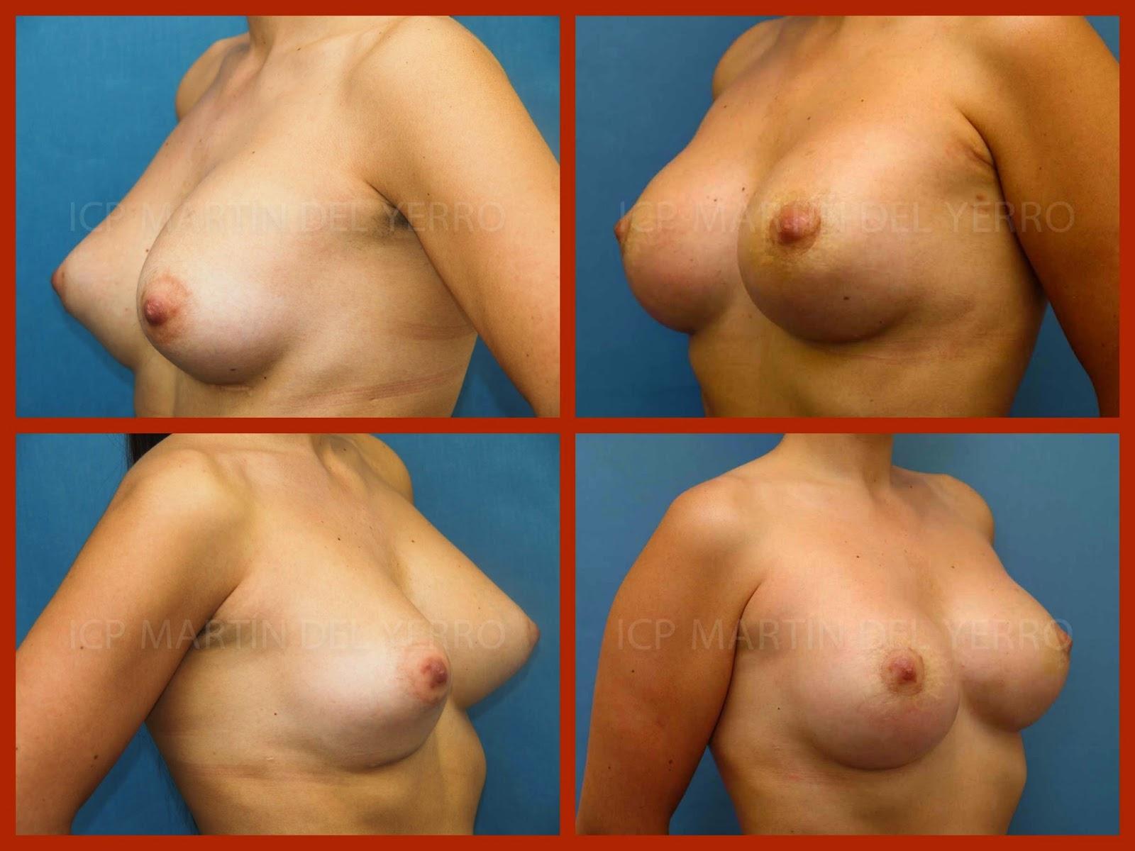 antes y después de cirugía secundaria de una mama tuberosa operada por el Dr. Moreno en Madrid