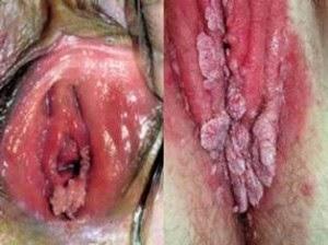 Benjolan Merah Di Bibir Vagina Seperti Daging Tumbuh