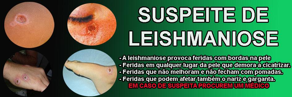SUSPEITE DE LEISHMANIOSE