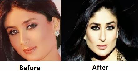 Katrina Kaif Before And After Nose Katrina Kaif News : Ka...