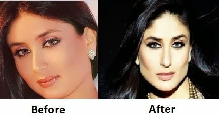 Katrina Kaif Before And After Nose Katrina Kaif Ne...