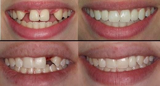 Phục hồi răng bị mất bằng cấy ghép implant