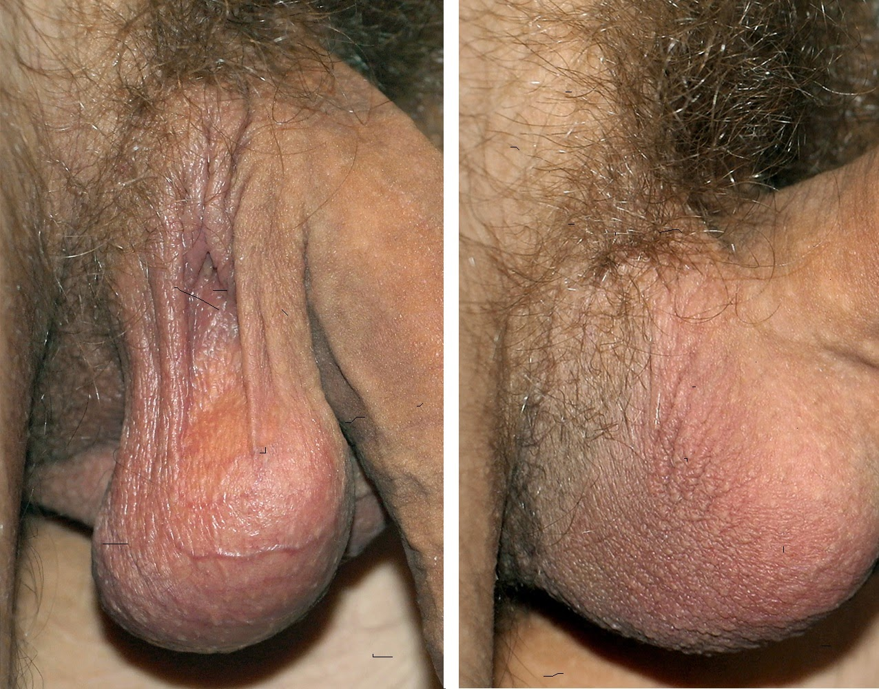 Male scrotum of a Southern European male, 30 years old