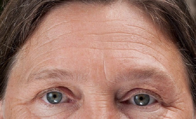 Get Rid Of Eye Wrinkles Naturally