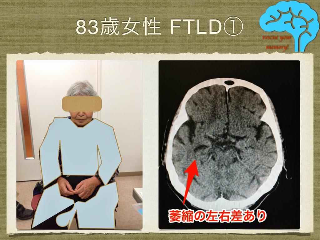 意味性認知症 83歳女性 脳萎縮の左右差
