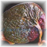 A Placenta é um órgão transitório que é responsável pela manutenção da gravidez. Desempenha as funções excretoras, respiratórias e nutritivas do feto