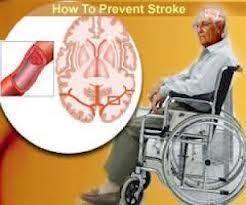 Herbal Manjur Stroke