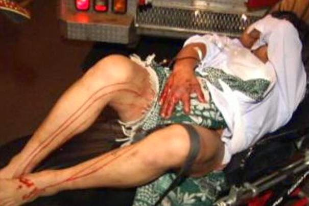 Kemaluan suami putus dipotong isteri dengan pisau cukur