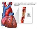 Pemasangan cincin jantung, stent jantung
