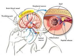 Cara Pemakaian Obat herbal vertigo dan migrain