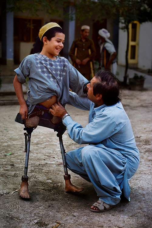 Photo of an Afghani boy with two artificial legs, standing with his father talking to him, kneeled down