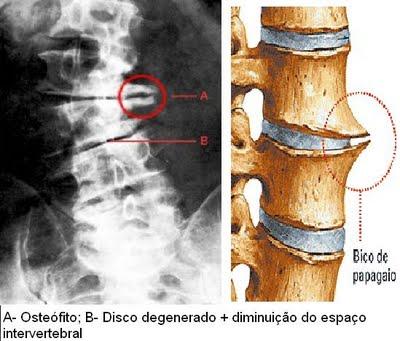 esclerose do osso subcondral
