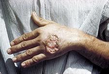 maladie de Leishmaniose,Les leishmanioses sont des affections cutanées ou viscérales dues à des protozoaires flagellés appartenant au genre Leishmania de la famille des Trypanosomidae et transmises par la piqûre de certaines espèces de phlébotomes, comprenant les mouches du genre Lutzomyia dans le Nouveau monde et Phlebotomus dans l'Ancien monde.Leishmaniose, maladies de peau,