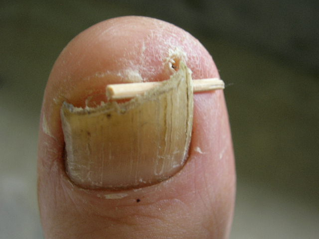 Ingrown_toenail_toothpick.jpg