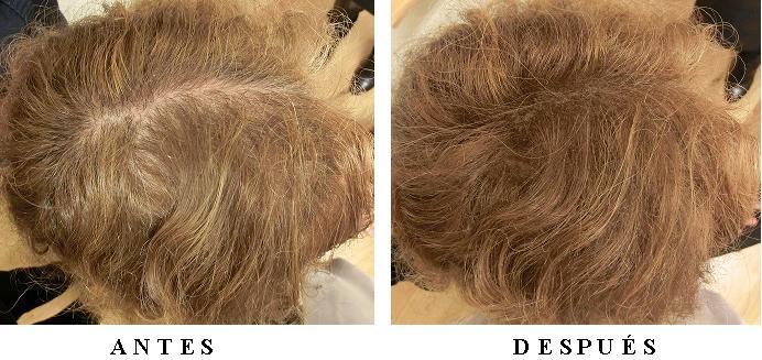El medio para el descoloramiento de los cabello sobre la cabeza