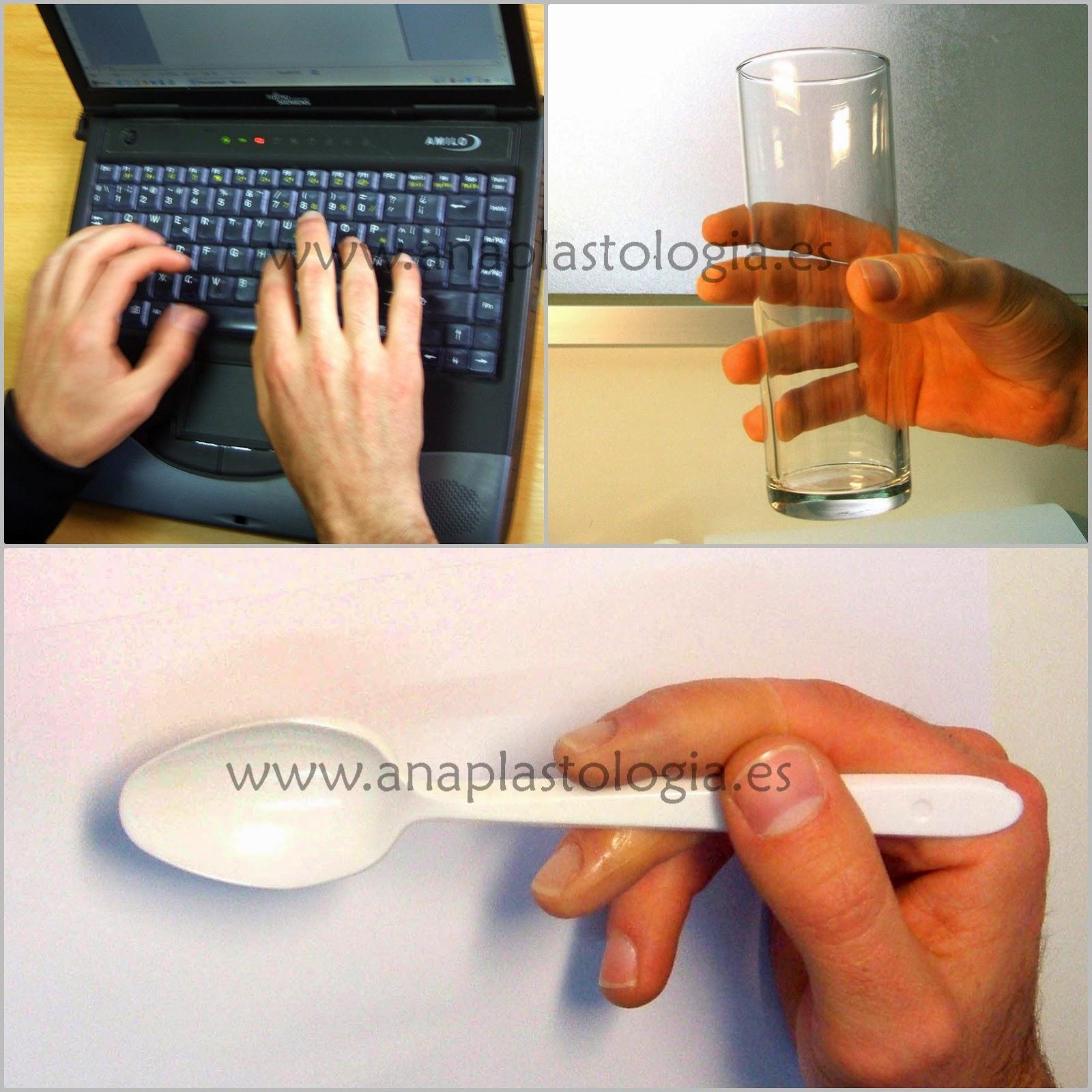 dedos, miembro superior
