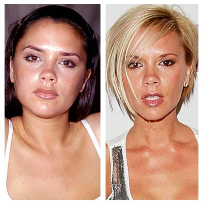 Penectomy Before And After http://www.nicezine.com/view/PlasticSurgeryBeforeAndAfter.html