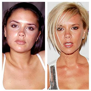 Victoria Beckham Plastic Surgery Before And After