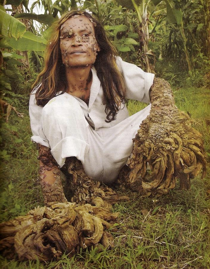 Amazing pictures of an Indonesian man dubbed The Tree Man before and after the operation to remove the fungus over his body
