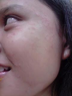 masalah kulit berpanau, panau di muka, panau, masalah panau, cara hilangkan panau, tips hilangkan panau, white spots on skin, dark spots, masalah tompokan putih di kulit,