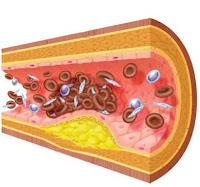 Levadura de Cerveza contra el Colesterol