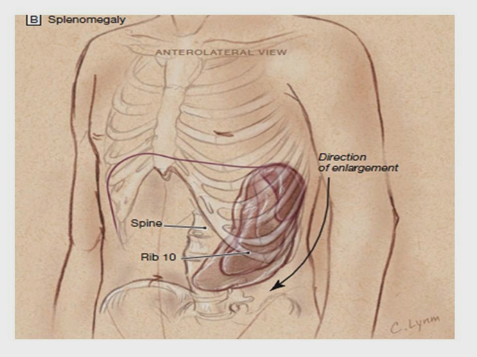 Valoración del paciente con esplenomegalia