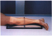 lateral projection legl