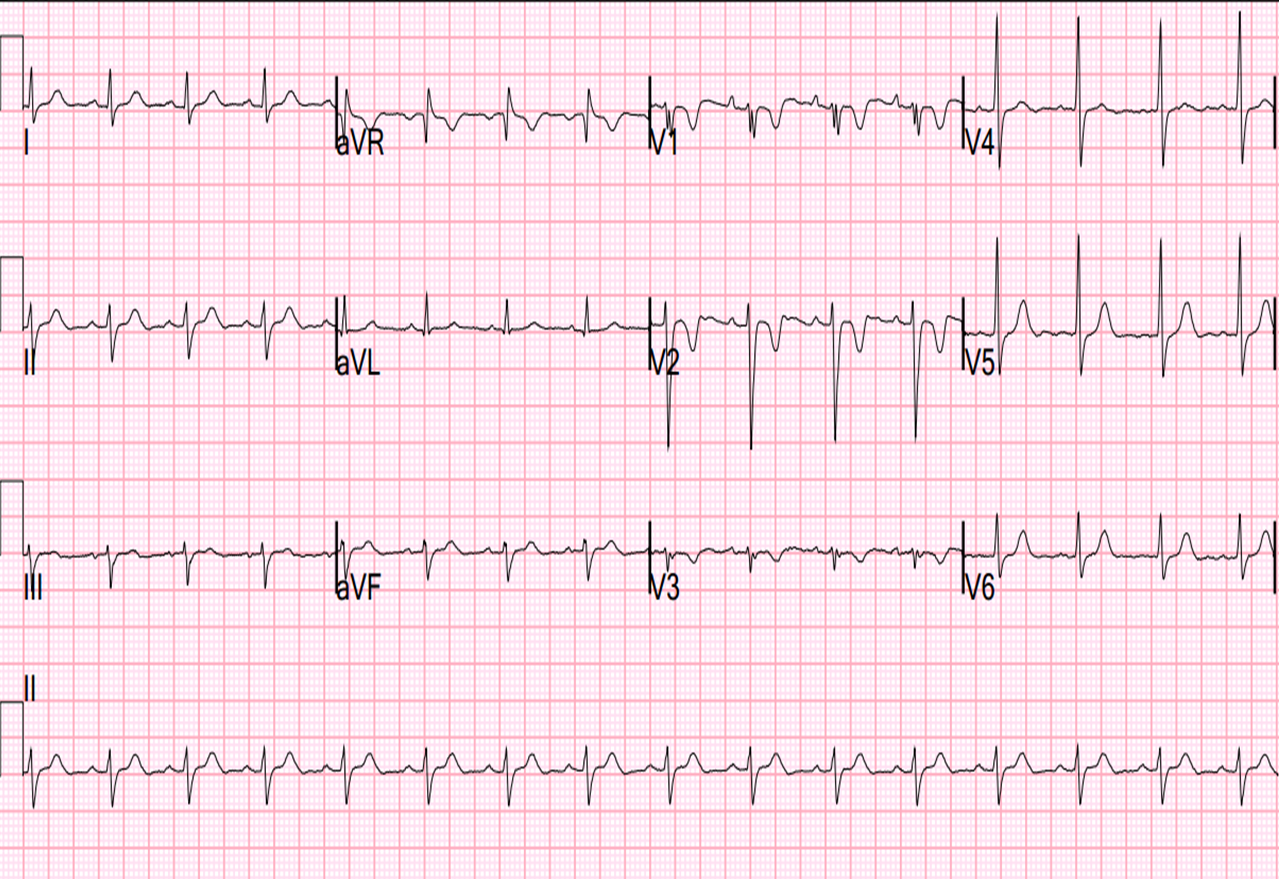 Dr. Smith's ECG Blog: Blunt Trauma in a Child