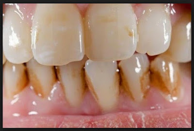 Buah Ini Dapat Menghilangkan Karang Gigi