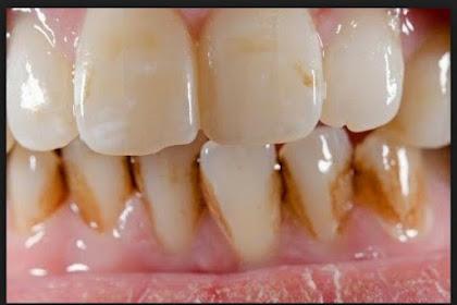 Buah Ini Dapat Menghilangkan Karang Pada Gigi