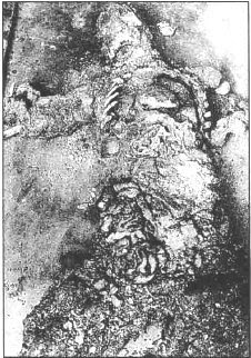 corpo carbonizado combustão humana espontânea