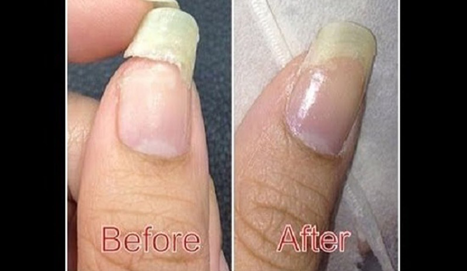 How to Fix a Broken Nail with Glue and Some Nail Polish! (VIDEO ...