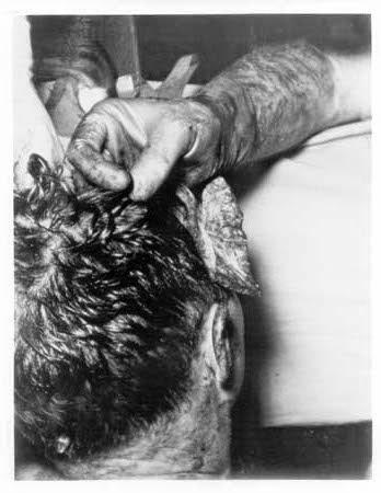 JFK-Autopsy-Photo.jpg