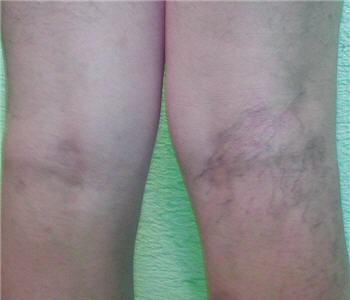 Las úlceras crónicas de las piernas a la várice varicosa