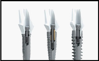 Dental Implants NJ - New Teeth One Day