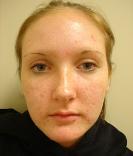 http://acner.org/img/care_and_prevention/removing-blackheads-from-face_1_4515.jpg