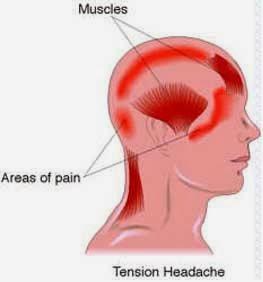 cara mengatasi sakit kepala membandel dengan k-link