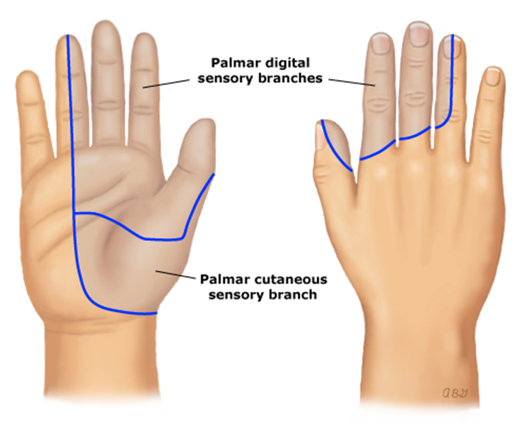eastside family health center: carpal tunnel syndrome, Human body