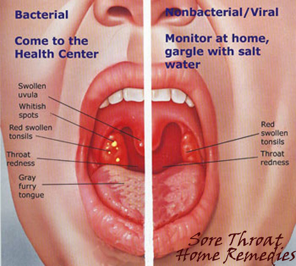 Sore throat pictures white spots