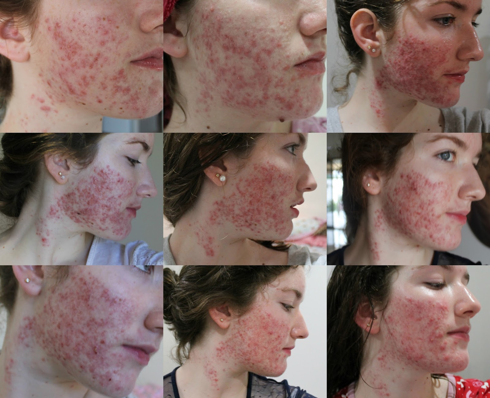 les cicatrices d'acné 1 ans