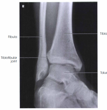 medial ankle projection Inside ankle view all medial ankle injuries tibialis posterior syndrome (pttd) medial calcaneal nerve entrapment stress fracture of the talus.